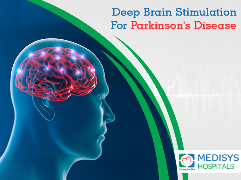 Deep Brain Stimulation Surgery – An Overview