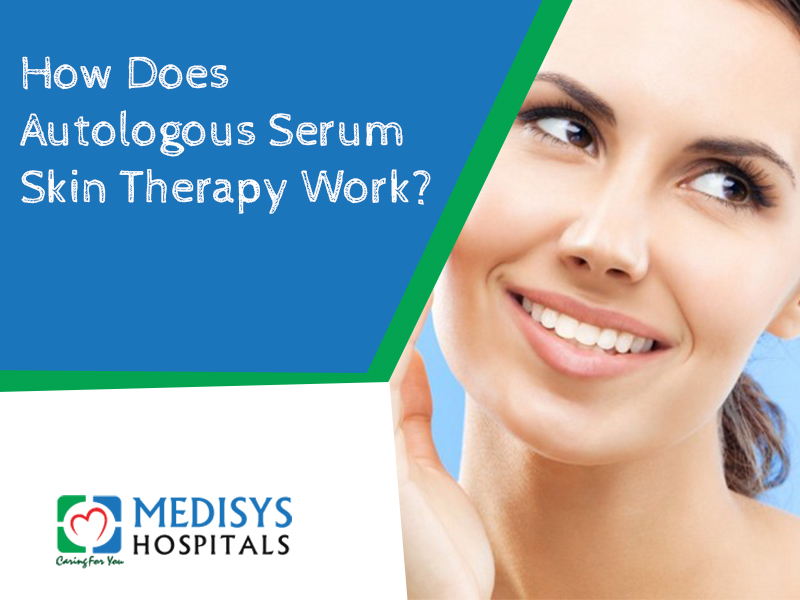 Autologous Serum Skin Therapy