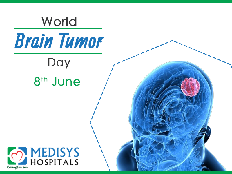 Brain Tumor: Types, Symptoms And Treatments