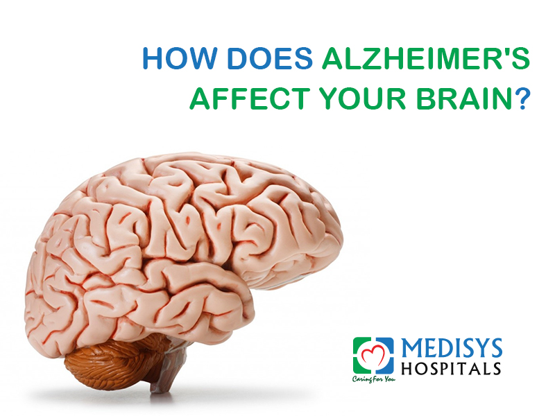 How Does Alzheimer's Affect Your Brain?