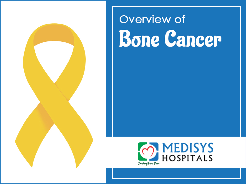 Overview Of Bone Cancer