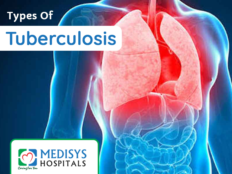 Types Of Tuberculosis
