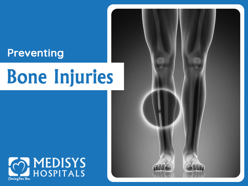 Preventing Bone Injuries
