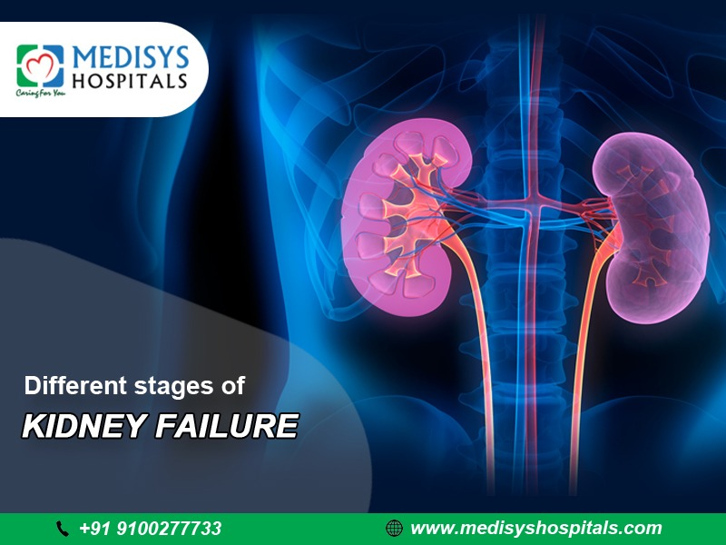Different Stages of Kidney Failure