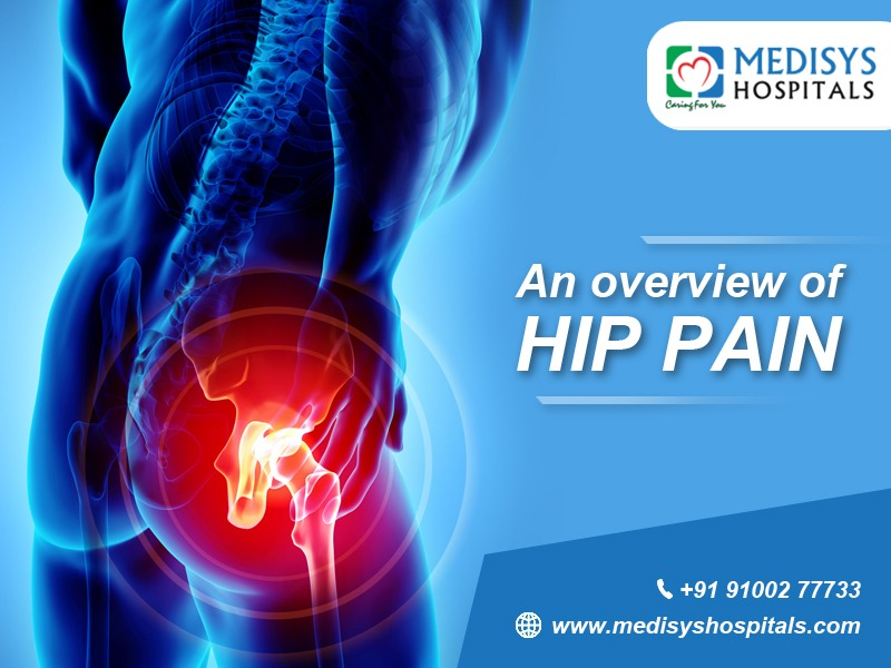 An Overview of Hip Pain